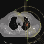 Xstrahl In Action: SARRP used in lung stereotactic arc therapy study