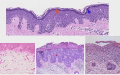 Xstrahl in Action: Multi-Disciplinary Management of Non-Melanoma Skin Cancer