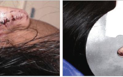 Keloid Scar Case Study