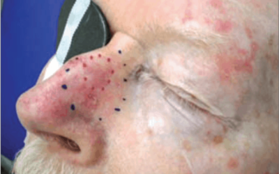 Squamous Cell Carcinoma Case Study