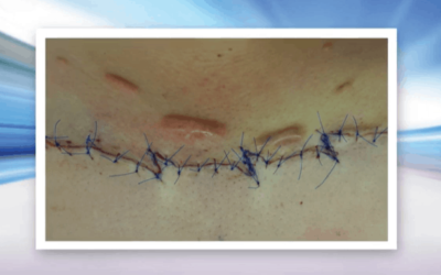 Using Superficial X-Rays to Treat Keloid Scarring