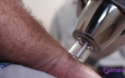The Future of Skin Cancer Treatment