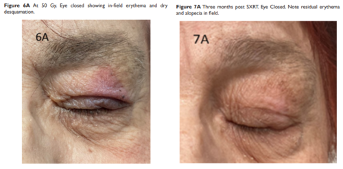 Radiotherapy for Eyelid Cancer